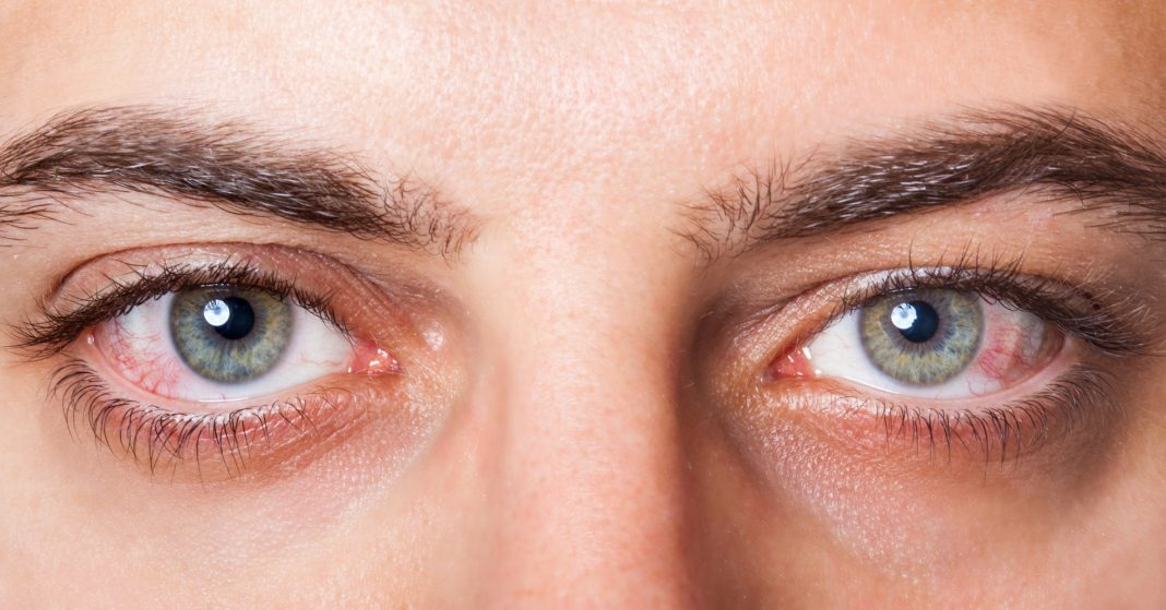 A Guy Took Excessive Impotence Drug. Then His Vision Turned Red