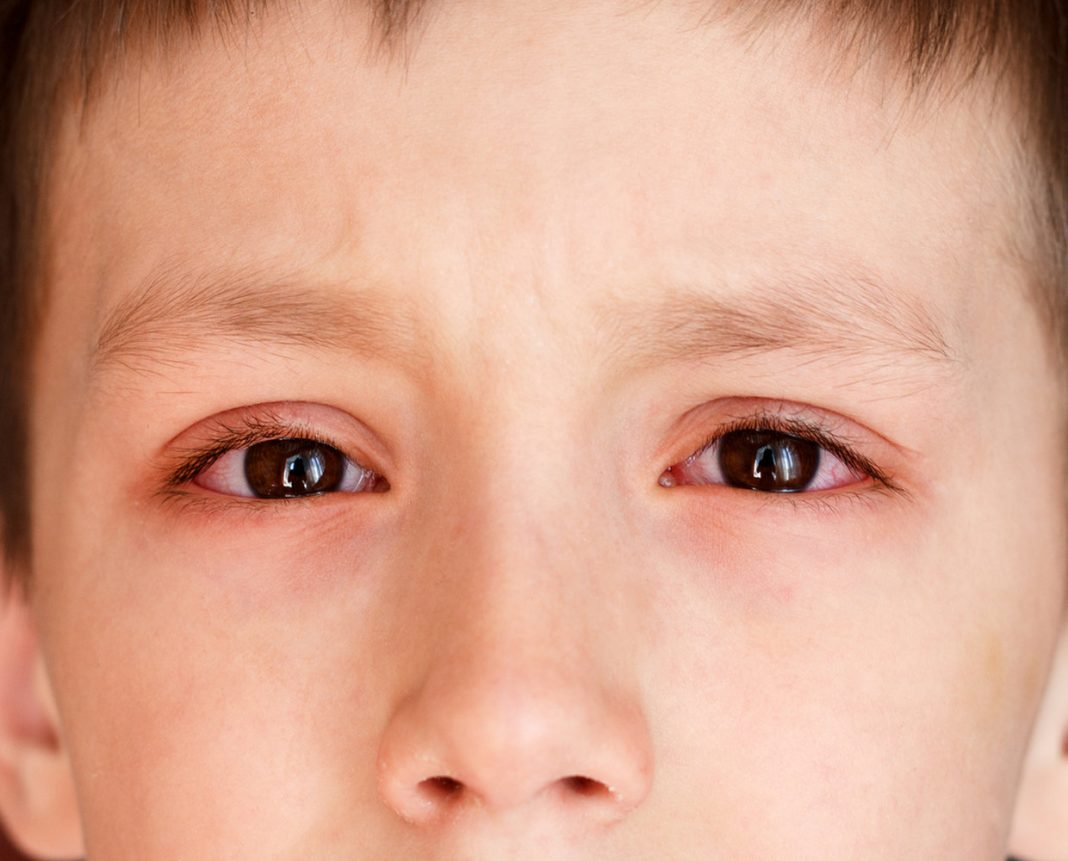 Pink Eye (Conjunctivitis): Causes, Manifestations & & Treatment