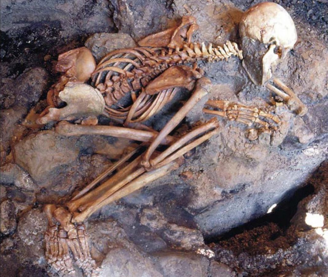 Did Vesuvius Victims' Brains Actually Boil and Their Skulls Explode?