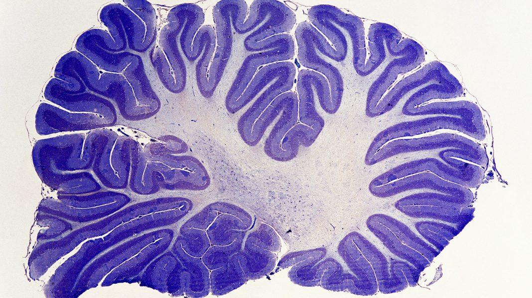 The Underestimated Cerebellum Gains New Regard From Brain Researchers