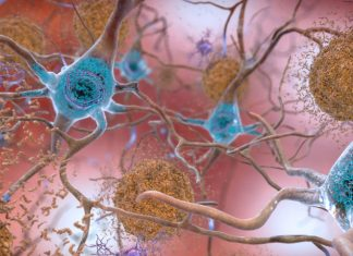 Here's an uncommon manner in which an Alzheimer's protein can spread out