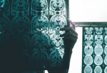 10 surprises that might rock biotech stocks in 2019, from success in Alzheimer's to a stumble in anxiety