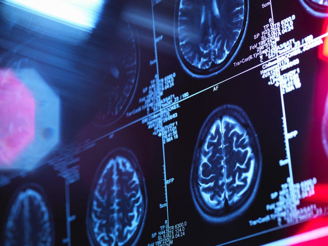 How Did 'Wonder' Male Return from Hazardous Brain Swelling?