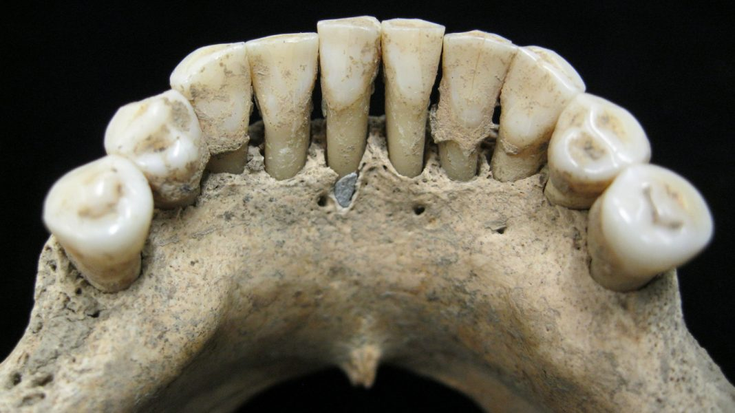 A Blue Idea In Middle Ages Teeth May Bespeak A Lady's Artistry Circa 1,000 A.D.