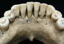 A Blue Hint In Middle Ages Teeth May Bespeak A Female's Artistry Circa A.D. 1000