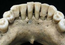 Uncommon blue pigment on middle ages teeth offers peek at female's concealed life