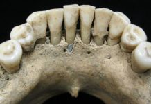 Blue Pigment Preserved On Female's Jaw Sheds New Light On Her Function In Middle Ages Society