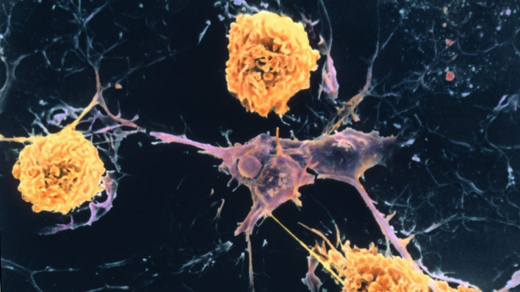 Scientist Discover A Web Of Aspects Behind Several Sclerosis