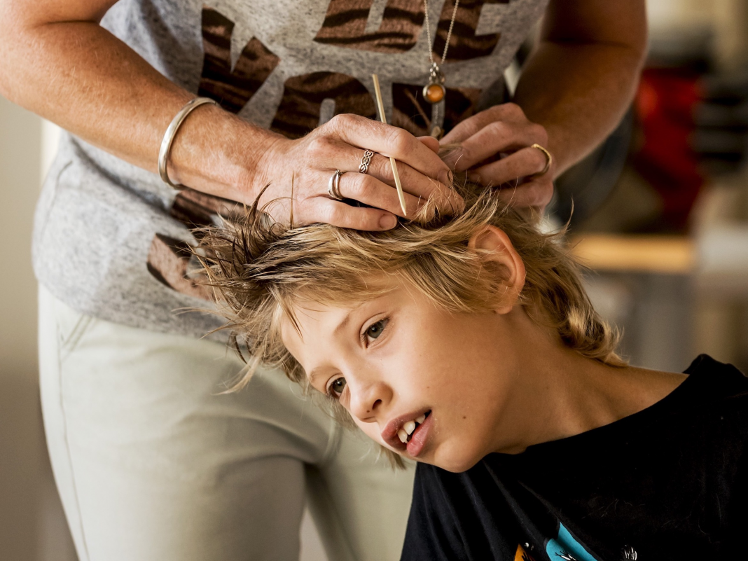 Here's why lots of non-prescription treatments will not eliminate lice