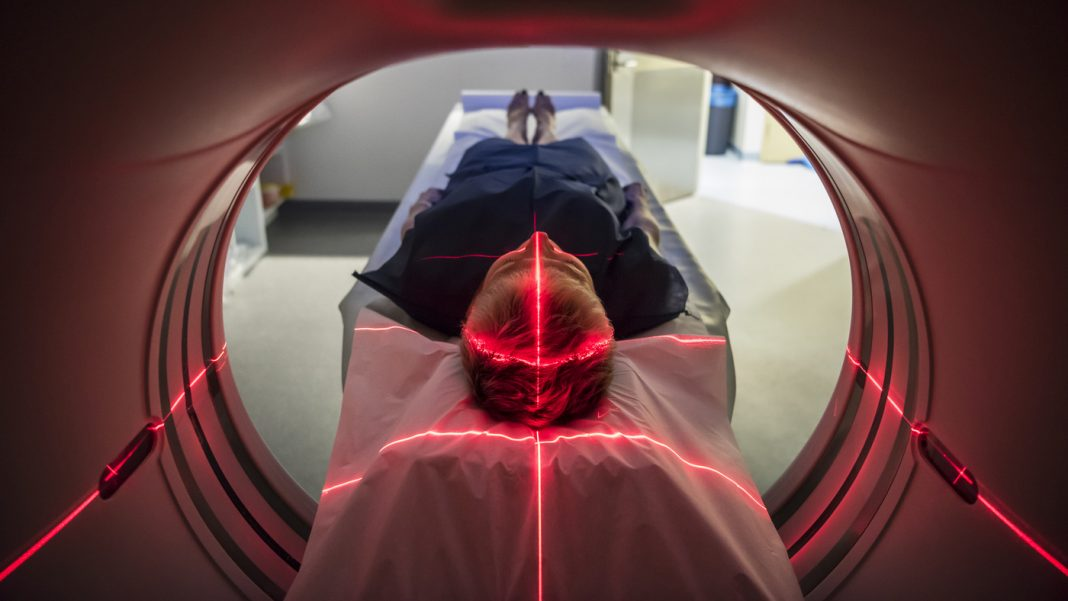 Scans Program Female Brains Stay Younger As Male Brains Unwind