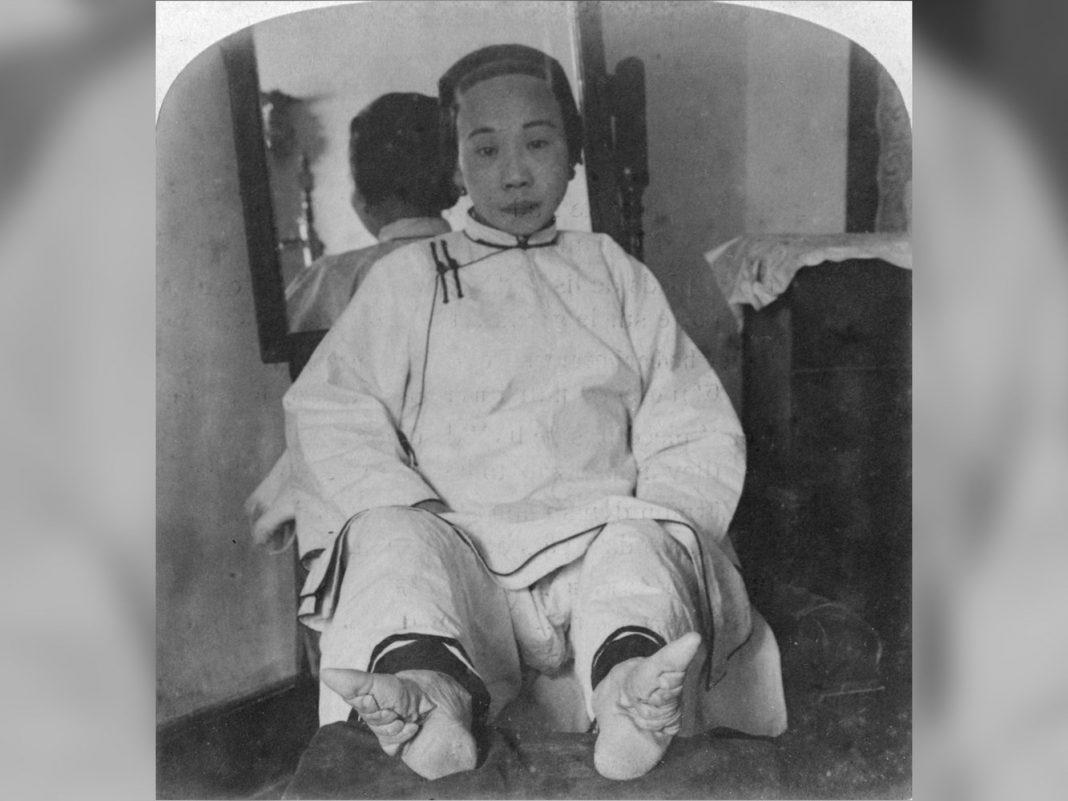 Ming Dynasty Skeletons Reveal Tricks of Foot-Binding