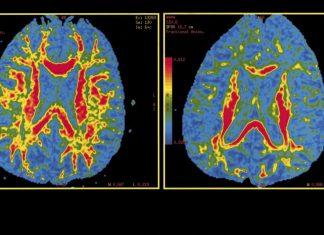 Training Expert System to Anticipate Alzheimer's Illness