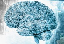 Is It Alzheimer's Or Another Dementia? The Right Response Matters