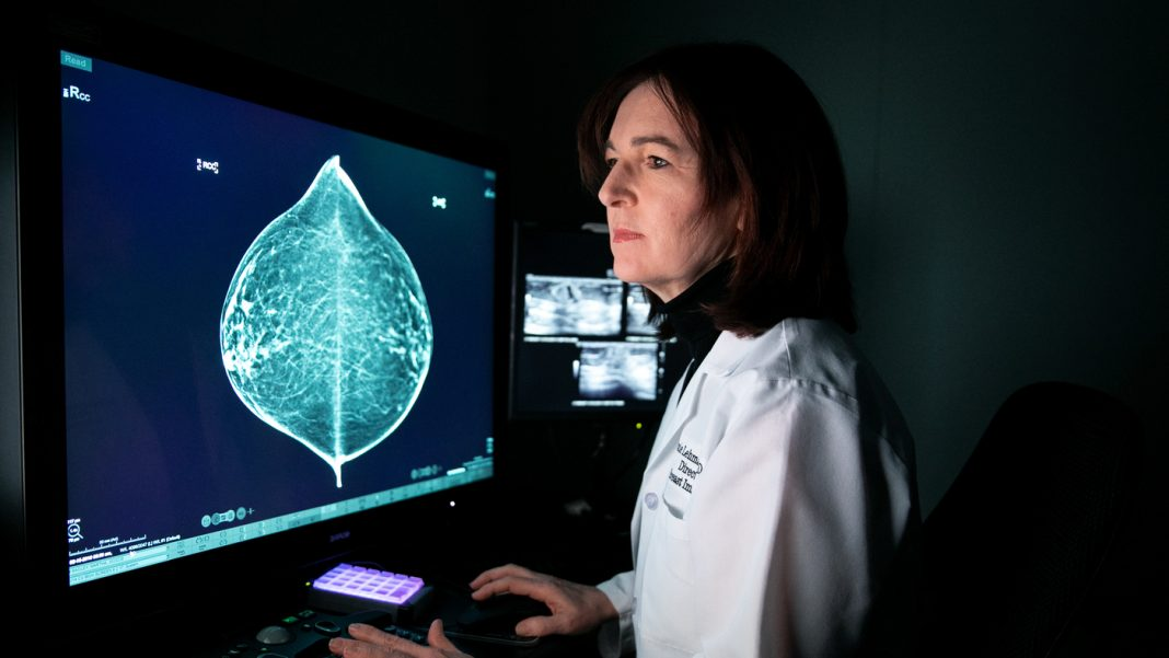 Training A Computer System To Check Out Mammograms In Addition To A Medical Professional