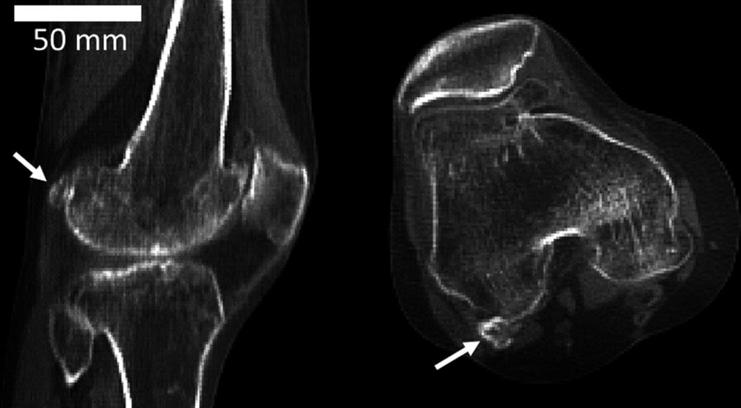 This Tiny Knee Bone Had Actually Almost Disappeared As People Progressed. It's Returning