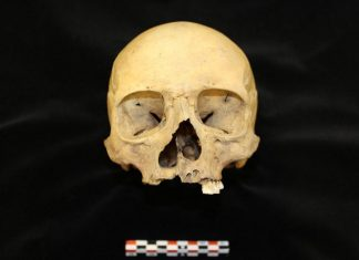 This Female From Middle Ages Iceland Dealt With A Disfiguring Facial Abnormality