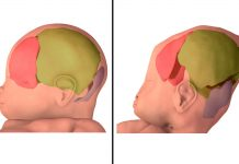 Just How Much Do Infants' Skulls Get Squished Throughout Birth? A Great Deal, 3D Images Reveal