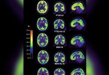 Brain Scans Reveal Possible Biomarker of Self-destructive Ideas in Individuals with PTSD