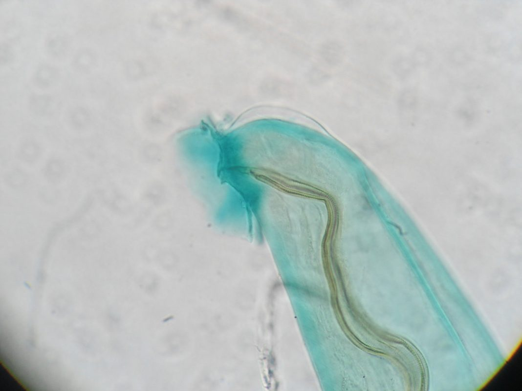 3 Cases of Brain-Infecting Parasite Just Recently Verified in Hawaii