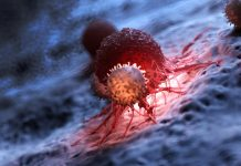 Could an Injection of Dead Cells Assist Battle Cancer?