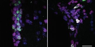 Rogue immune cells can penetrate old brains