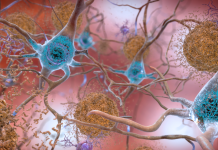 New Markers For Alzheimer's Illness Might Help Medical Diagnosis And Accelerate Drug Advancement