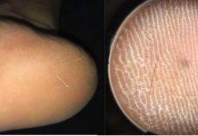 Guy's Foot Discomfort Was because of Unusual 'Hair Splinter'