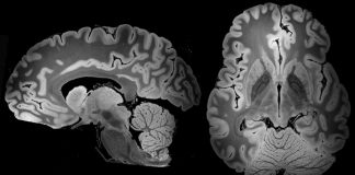 A 100- hour MRI scan caught the most in-depth appearance yet at an entire human brain