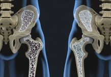 Osteoporosis: Threats, Signs and Treatment