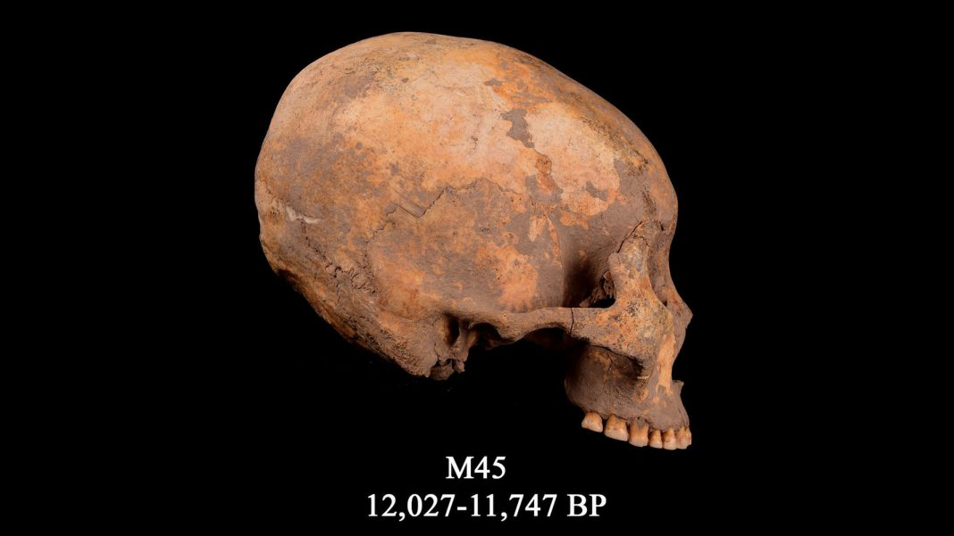 12,000 Years Ago, a Young Boy Had His Skull Squashed into a Cone Forming. It's the Earliest Proof of Such Head-Shaping.