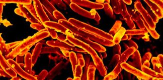A brand-new FDA-approved drug takes goal at a lethal kind of tuberculosis