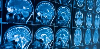Electrodes reveal a look of memories emerging in a brain