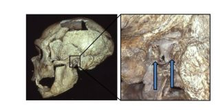 Neanderthals experienced a genuine epidemic of swimmer's ear