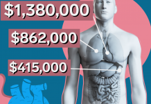 Why organ transplants are so costly in the United States