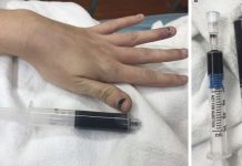 Blueish lady with chocolaty blood highlights unusual threat of typical anesthetic