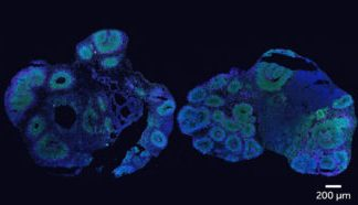 Organoids deal hints to how brains are made in human beings and chimpanzees