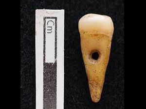 Turkish teeth necklaces from 8,500 years ago hint at ancient rituals