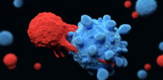 Exploding cancer cells can cause serious side effects in CAR-T cell therapies