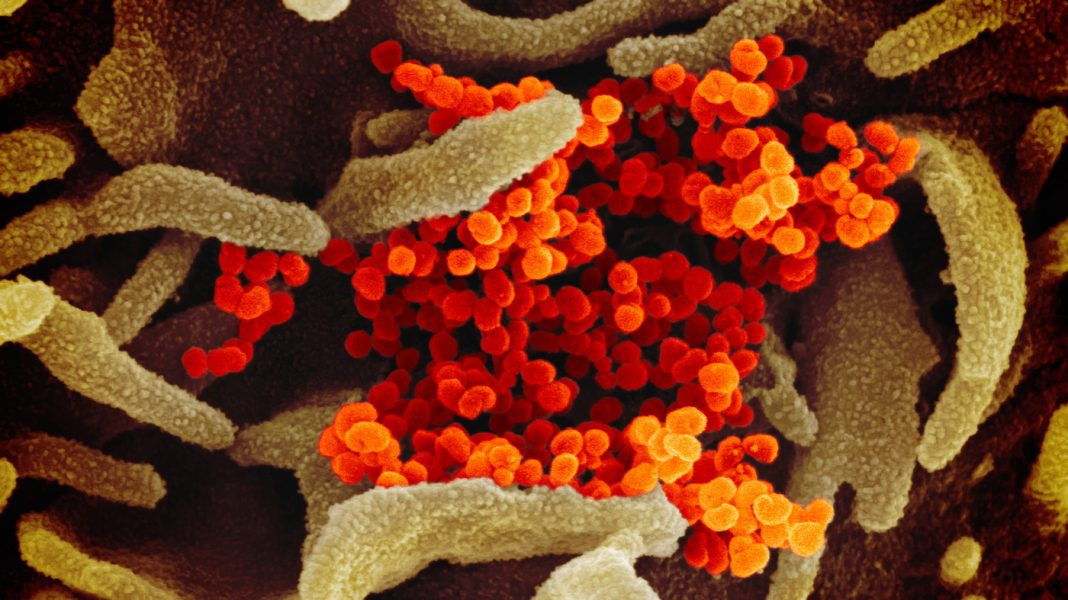 IMAGES: What New Coronavirus Looks Like Under The Microscope