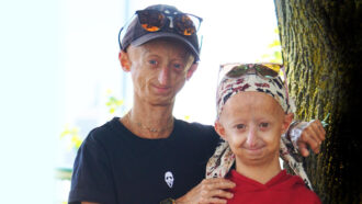 The FDA has approved the first drug to treat the rapid-aging disease progeria