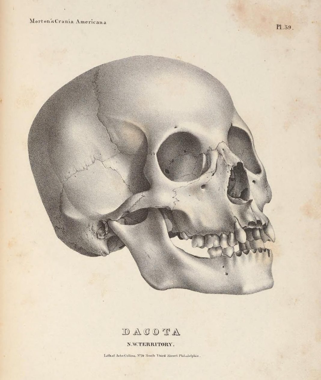 How A Museum's Human Skull Collection Sparked A Racial Reckoning